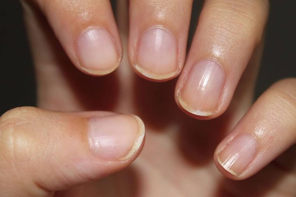 Psoriasi di unghie onikholizis trattamento