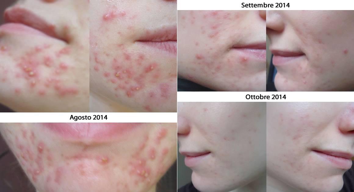 acne e silicio organico