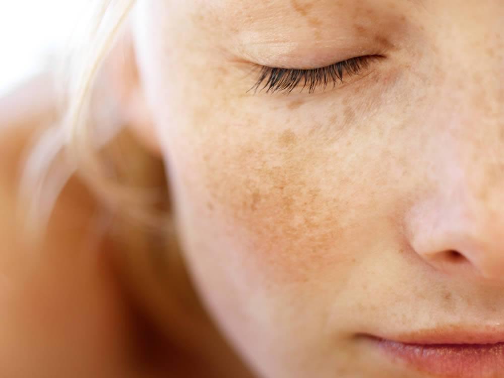 Detox: detossificazione profonda dell'organismo