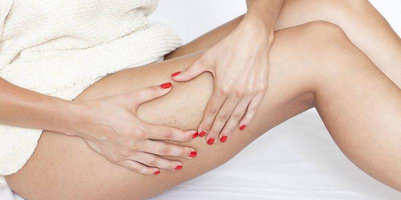 tratta la cellulite con i metodi naturali