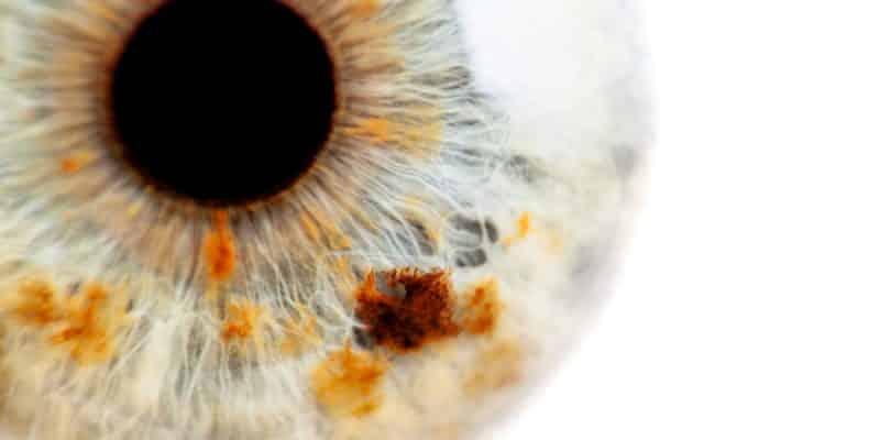 Invecchiamento oculare